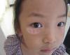 白癜风会给儿童带来哪些危害