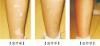 肢端型白癜风有哪些需要注意的